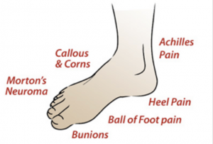 Common Causes of Foot & Ankle Pain PICTURE 1